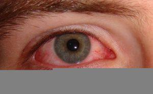 Pink Eye Treatment and Symptoms