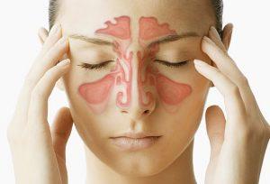 Acute Sinusitis: Symptoms and Treatment